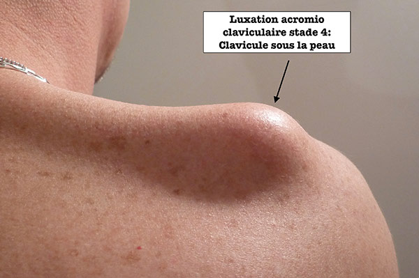 luxation-acromio-claviculaire.jpg